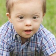 How Frequently Does Down Syndrome Occur?