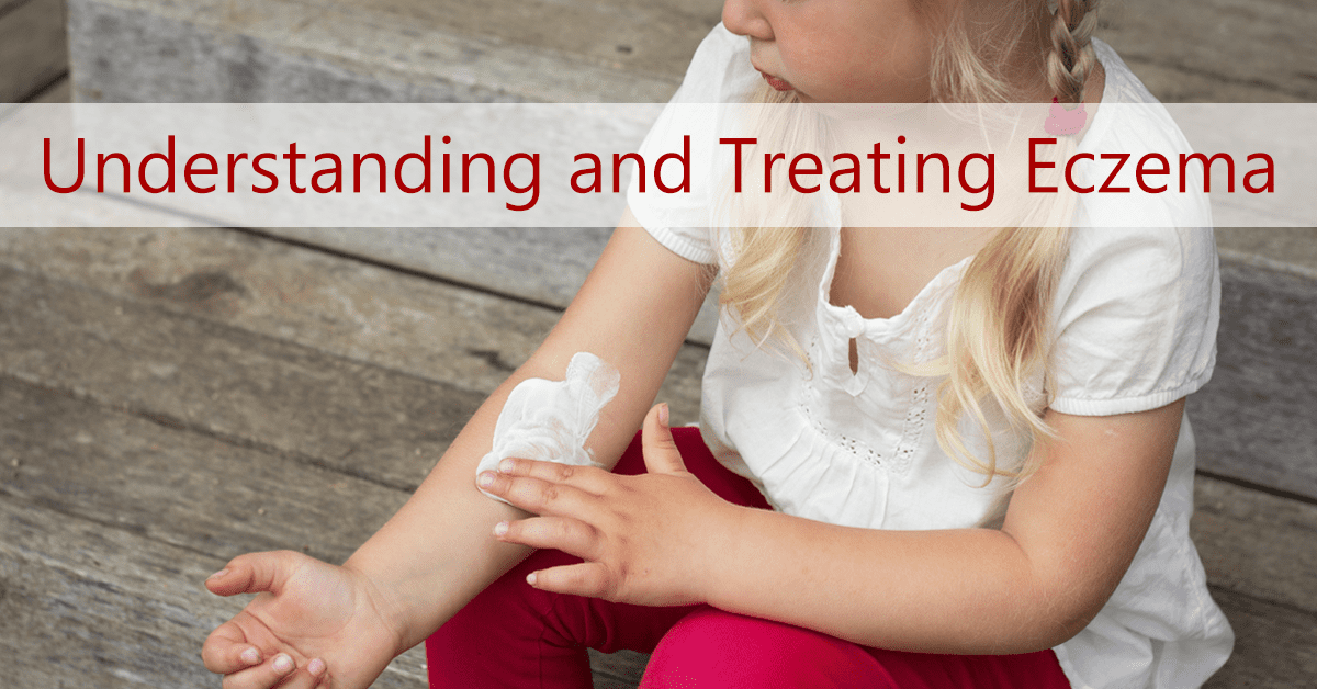Treating Eczema in Toddlers & Infants | Ask Dr  Sears