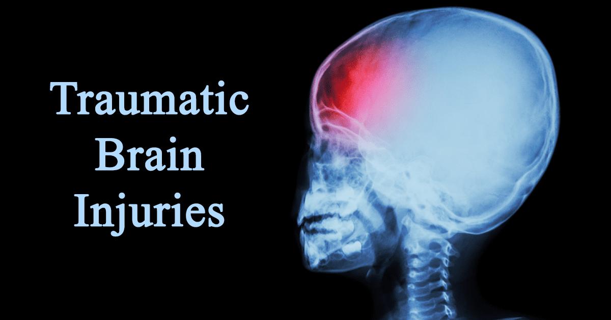 Traumatic brain injury child